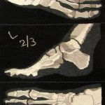 tapestry of an Xray of a foot